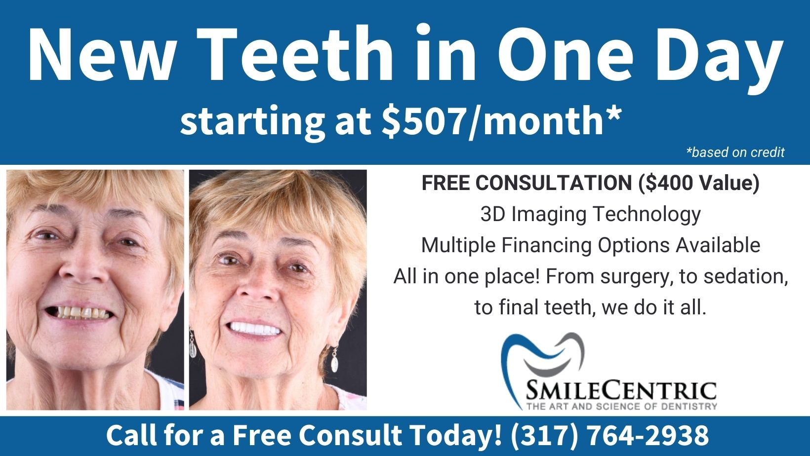 New teeth in One Day Starting at $507 per month